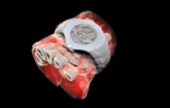 Radiografie 3D color
