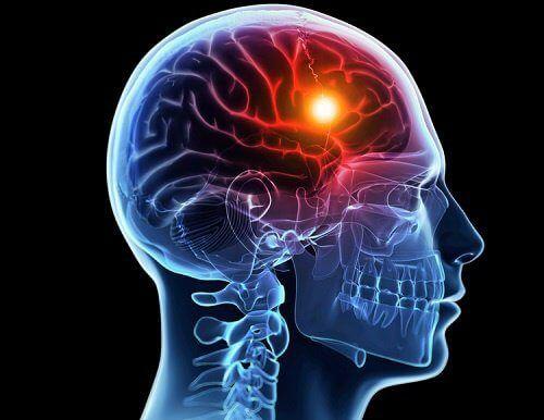 Dispozitiv ce previne accidentul cerebral