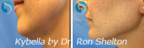 Kybella Before/After Photo Gallery