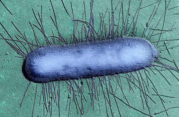 Escherichia coli entérohémorragique : la recherche progresse