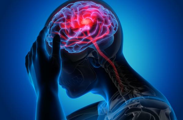 Maladies du cerveau : les dernières avancées de la recherche
