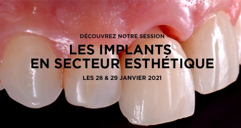 Les implants en secteur esthétique